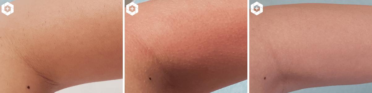 egale huid