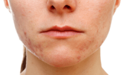 De beste producten tegen acne